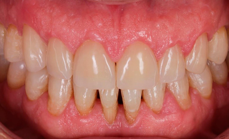 Resultado final carillas dentales