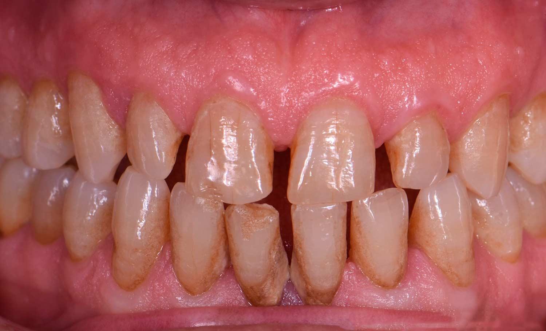 Casos clínicos carillas dentales